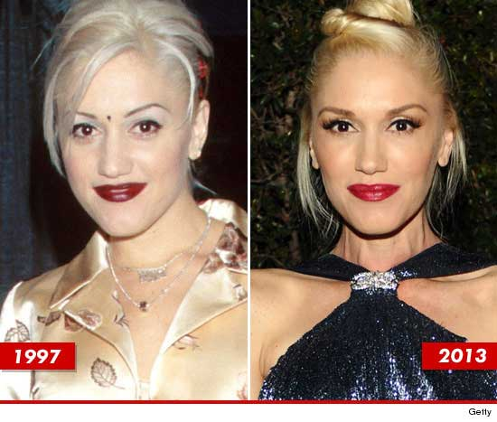 Marilyn Before Plastic Surgery photo - 1