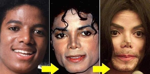 Micheal Jackson Before Plastic Surgery photo - 1