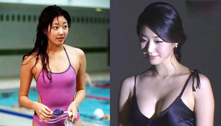 Miss Korea Plastic Surgery Before After photo - 1