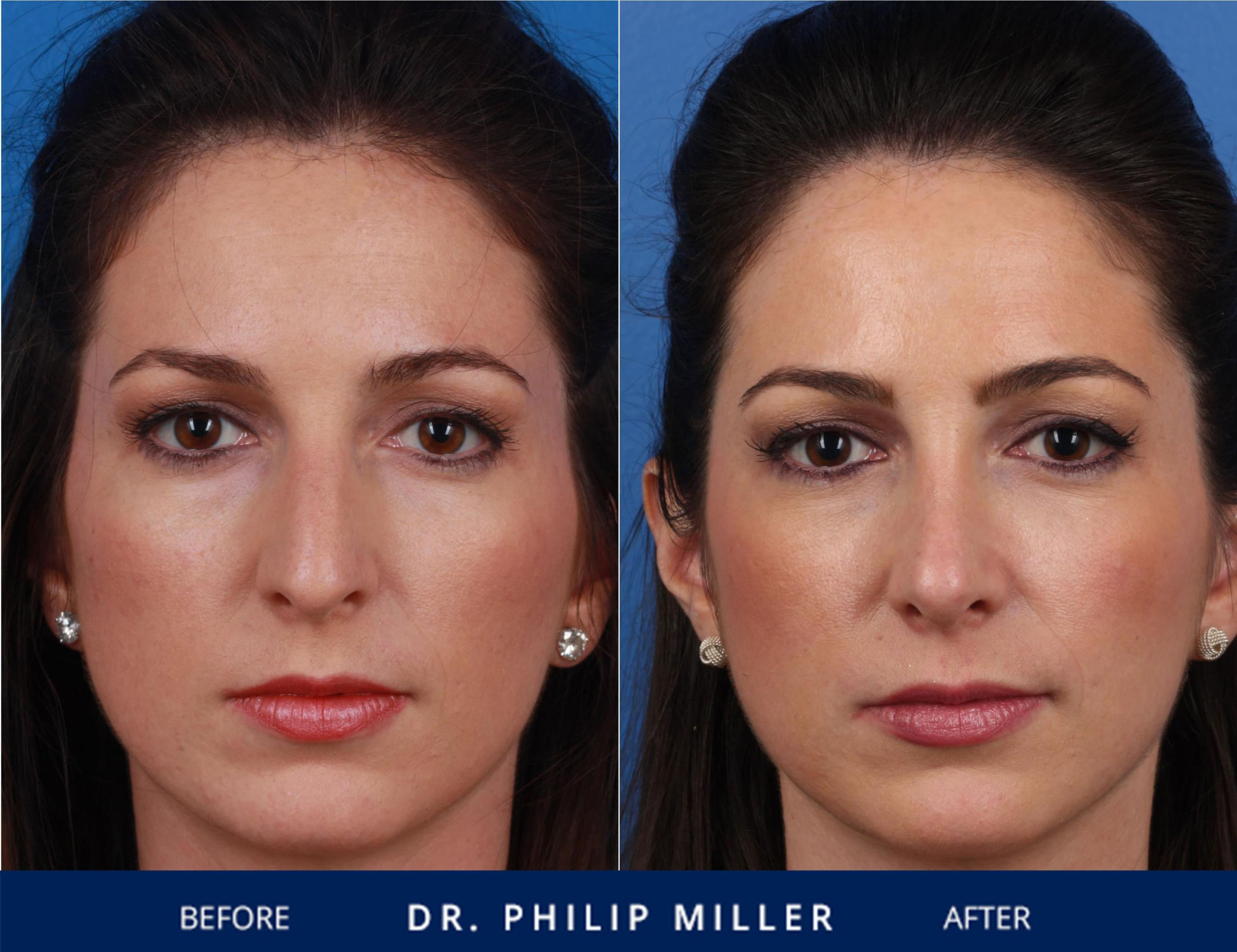Nose Plastic Surgery Before After photo - 1