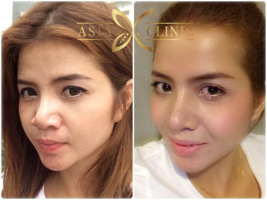 Nose Plastic Surgery Before After Korea photo - 1