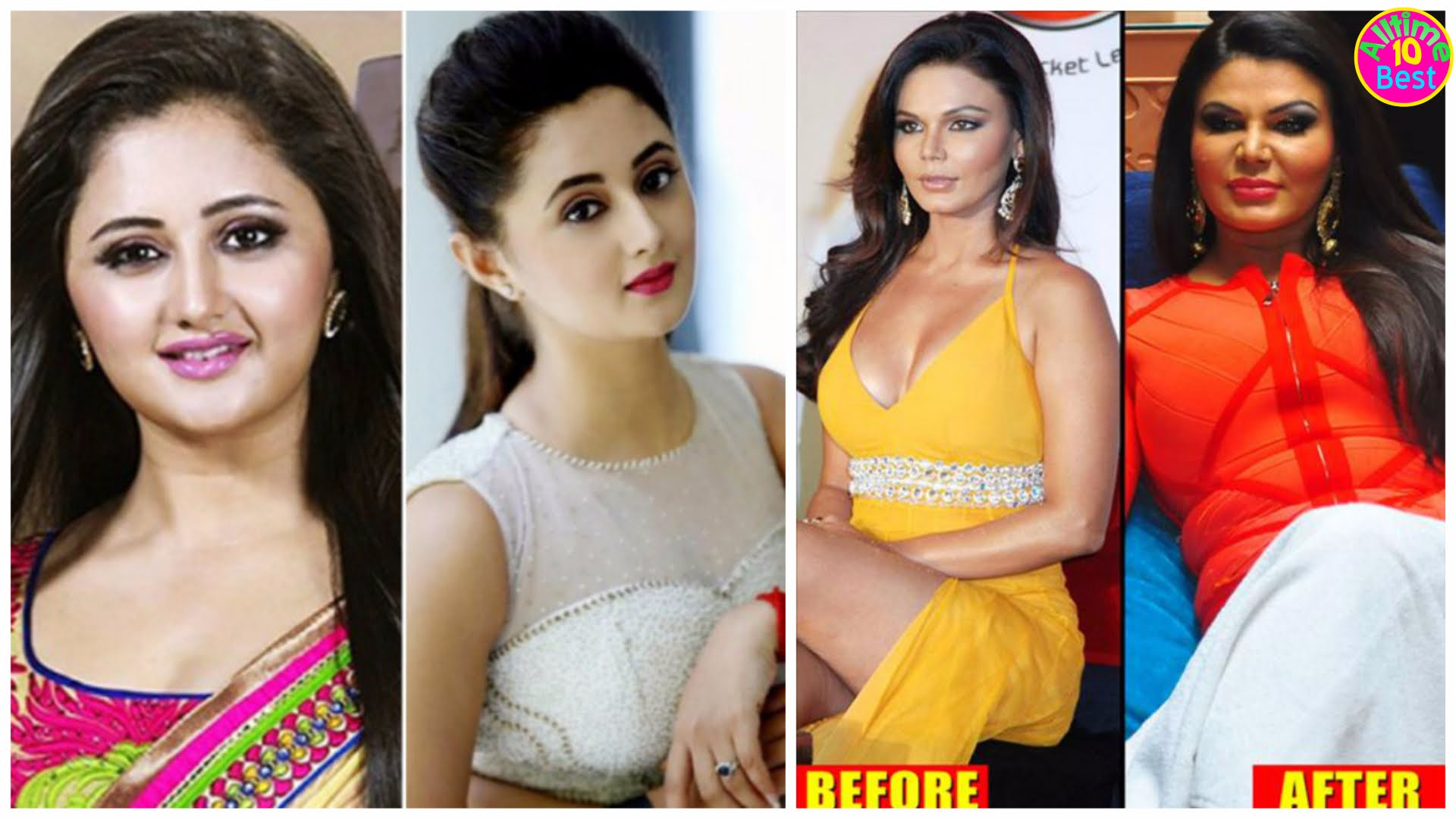 Actors Before And After Plastic Surgery photo - 1