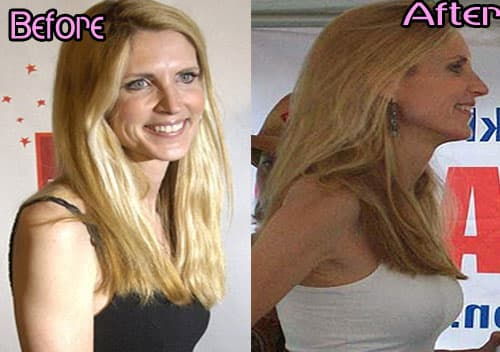Ann Coulter Before Plastic Surgery photo - 1