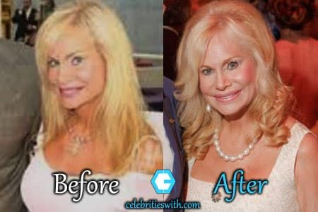Annabel Bowlen Before Plastic Surgery photo - 1