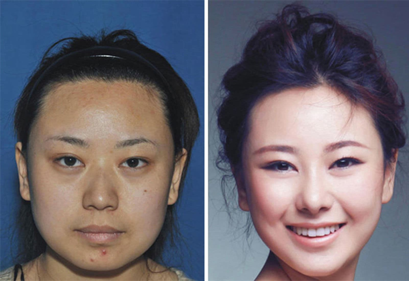 Asian Woman Plastic Surgery Before After photo - 1