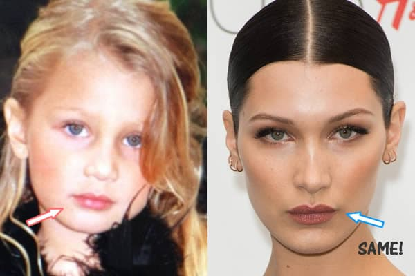 Before After Bellahadid Plastic Surgery photo - 1