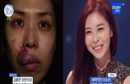 Before After Korean Plastic Surgery photo - 1