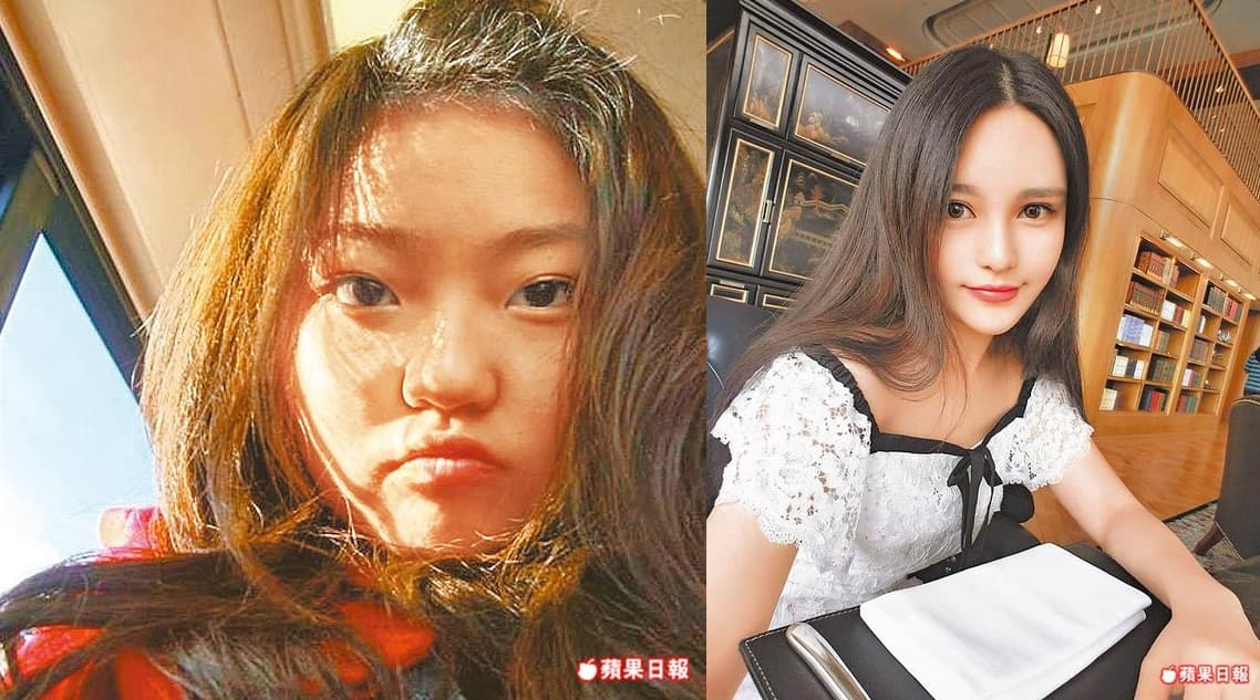 Before And After Bad Plastic Surgery photo - 1