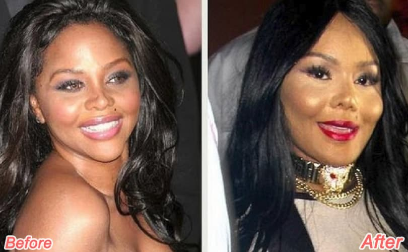 Before Ang After Plastic Surgery photo - 1