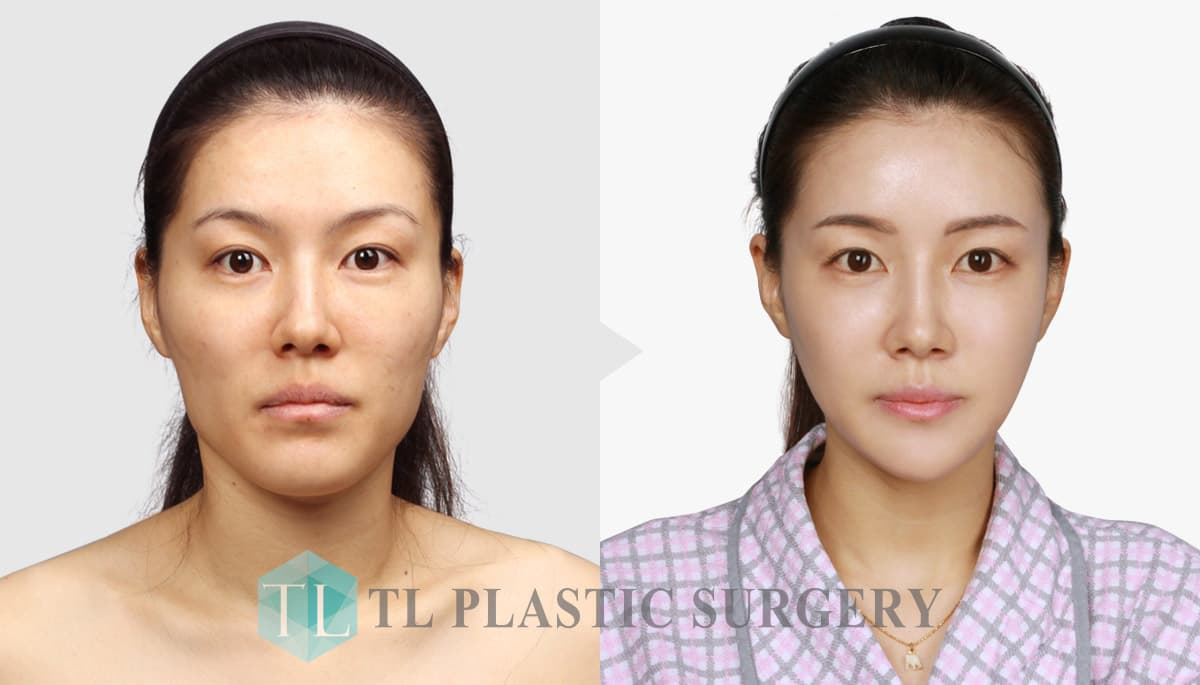 Best Asian Plastic Surgery Before After photo - 1