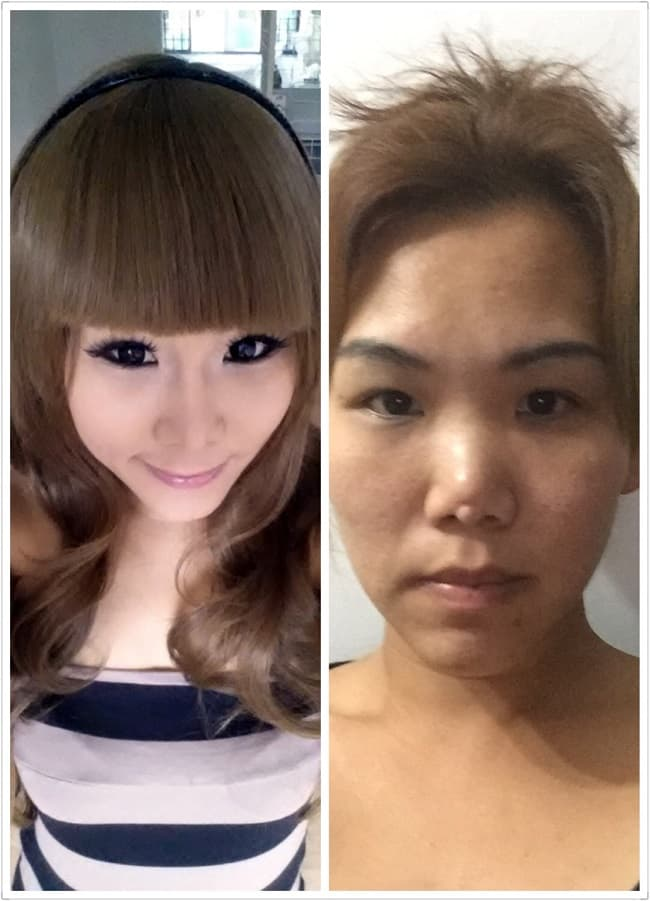 Botched Plastic Surgery Before And After photo - 1