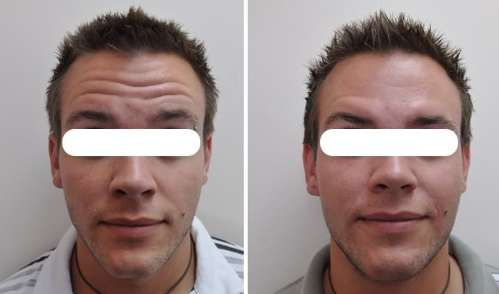 Calgary Plastic Surgery Before And After photo - 1