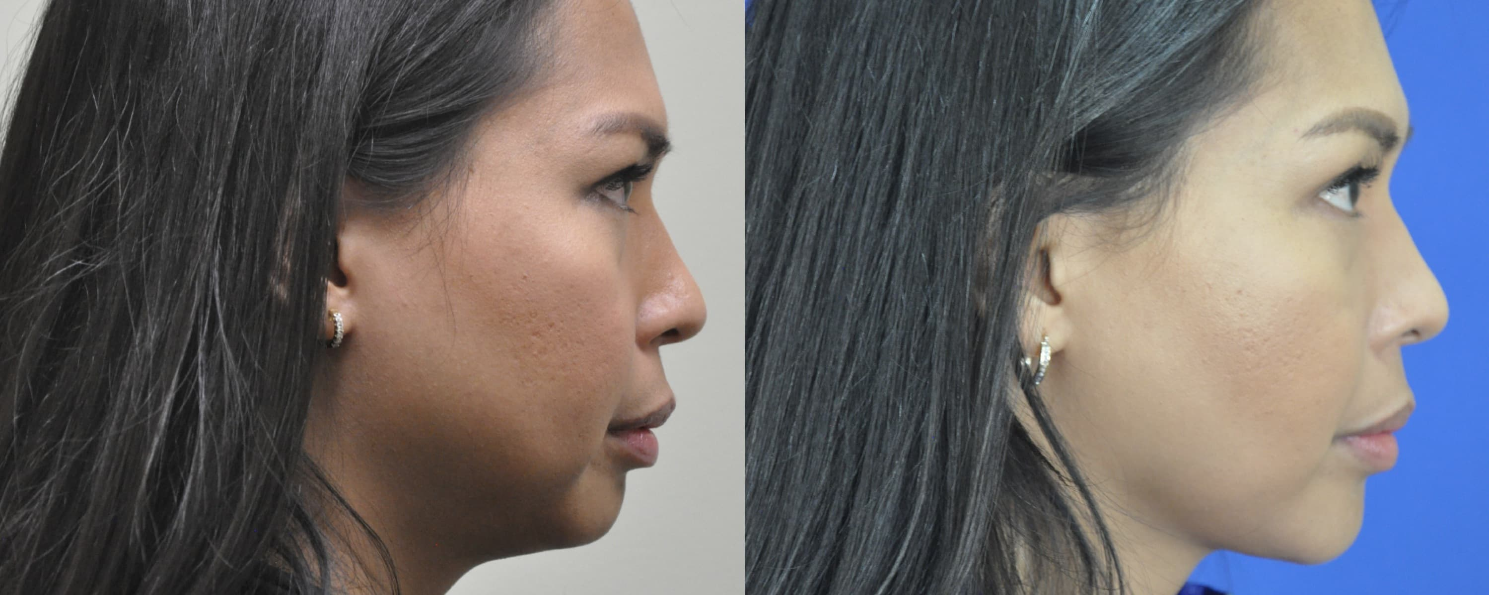 Chin Plastic Surgery Before And After photo - 1