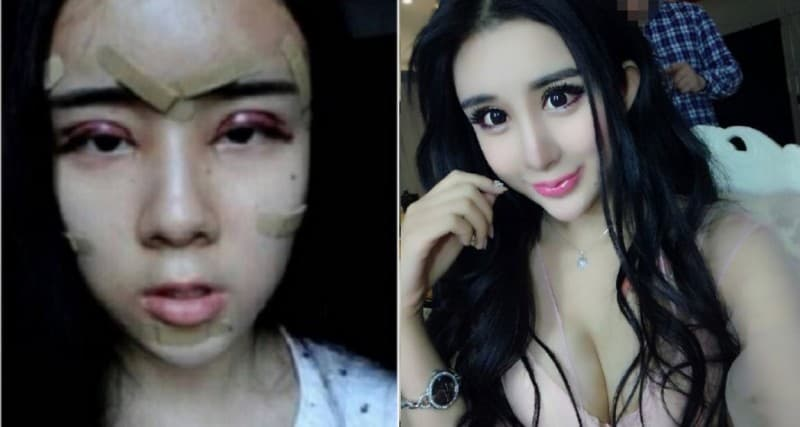 Chinese Plastic Surgery Before After photo - 1