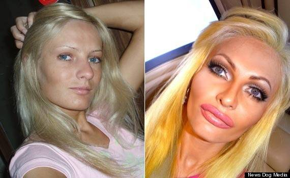 Crazy Plastic Surgery Before And After photo - 1