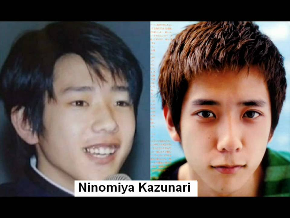 Dbsk Plastic Surgery Before And After photo - 1