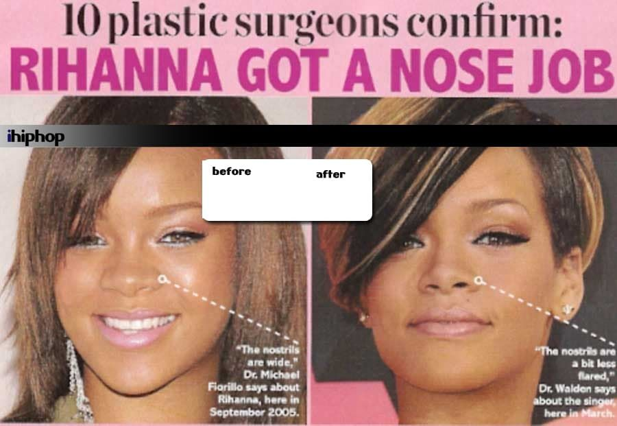 Drake Plastic Surgery Before And After photo - 1
