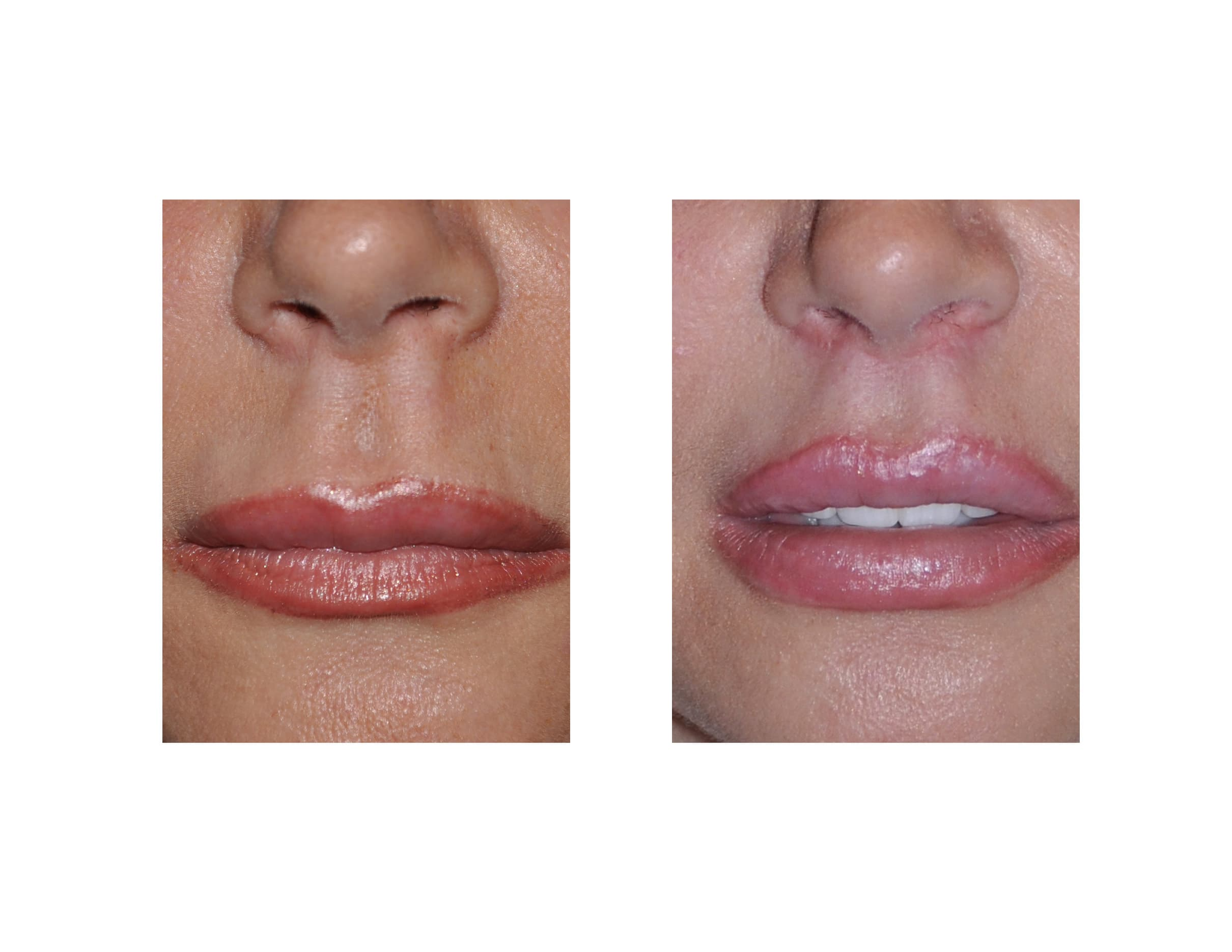 Eppley Plastic Surgery Before After photo - 1