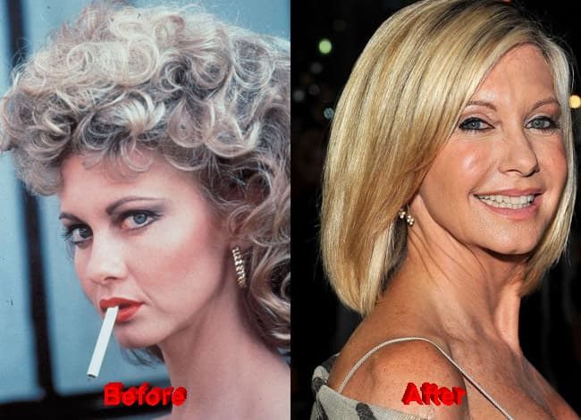 Famous Before And After Plastic Surgery photo - 1