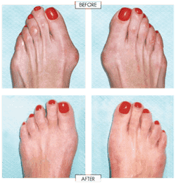 Foot Plastic Surgery Before And After photo - 1