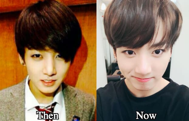 Jungkook Before Plastic Surgery photo - 1