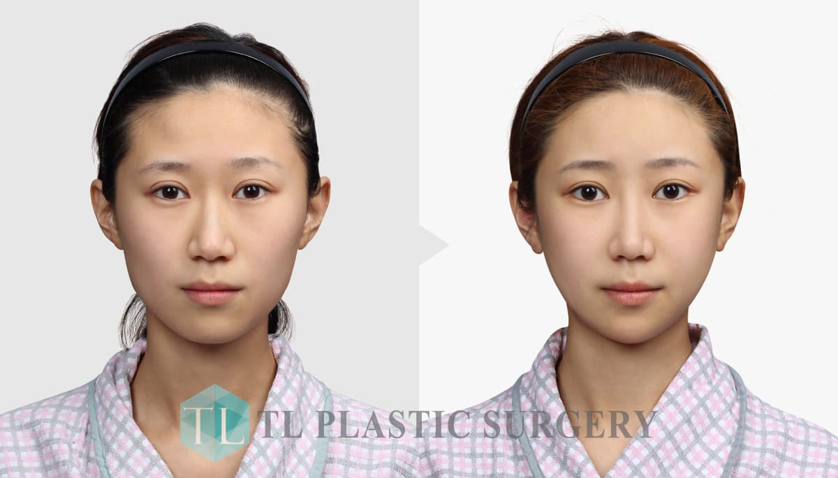 Jaw Plastic Surgery Before And After photo - 1