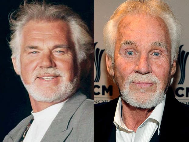Kenny Rogers Before Plastic Surgery photo - 1