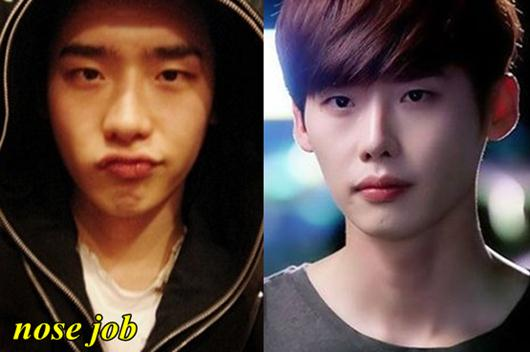Korean Plastic Surgery Before After Gif photo - 1