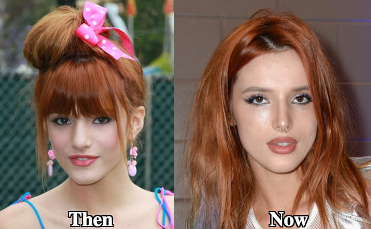 Plastic Surgery Before And Afer photo - 1