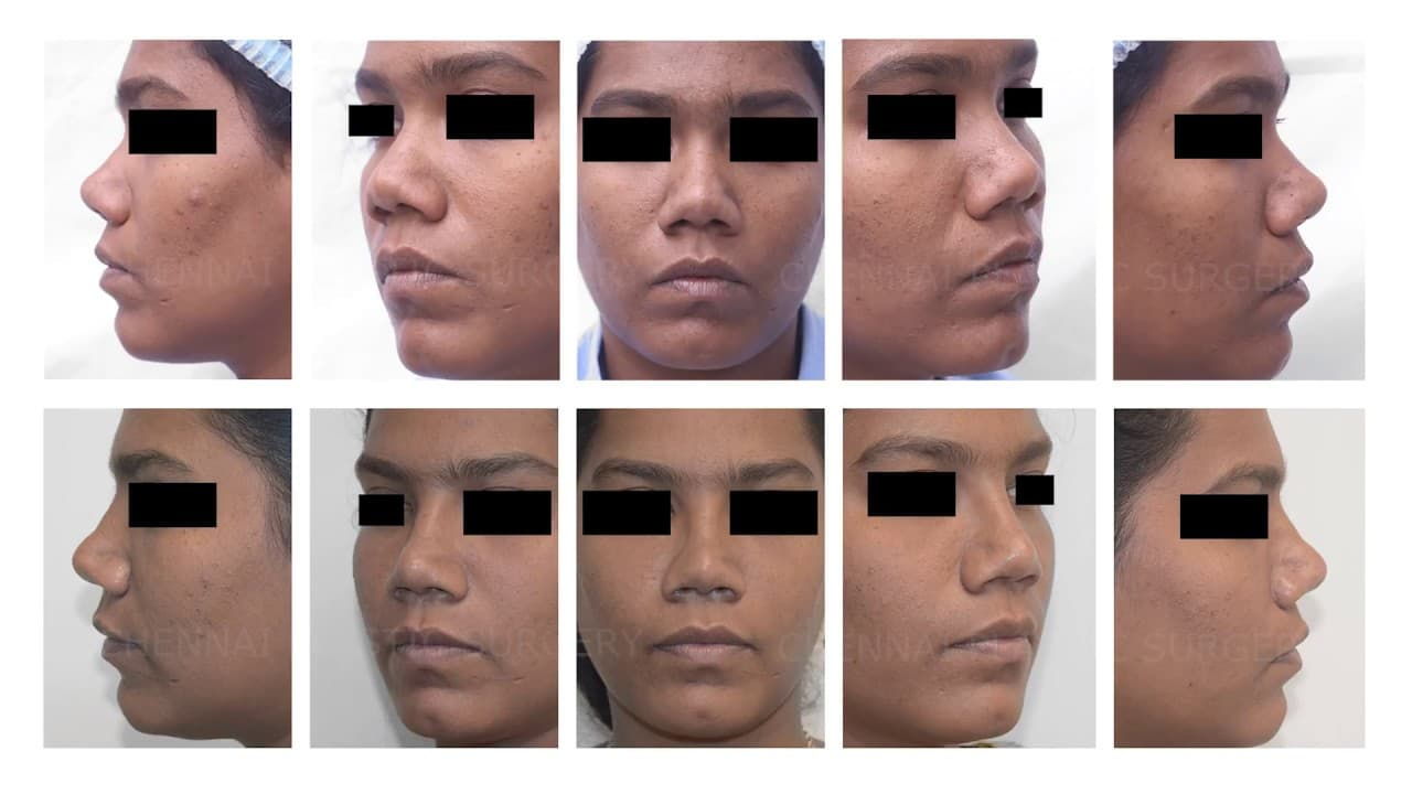 Plastic Surgery Before And After Chennai photo - 1
