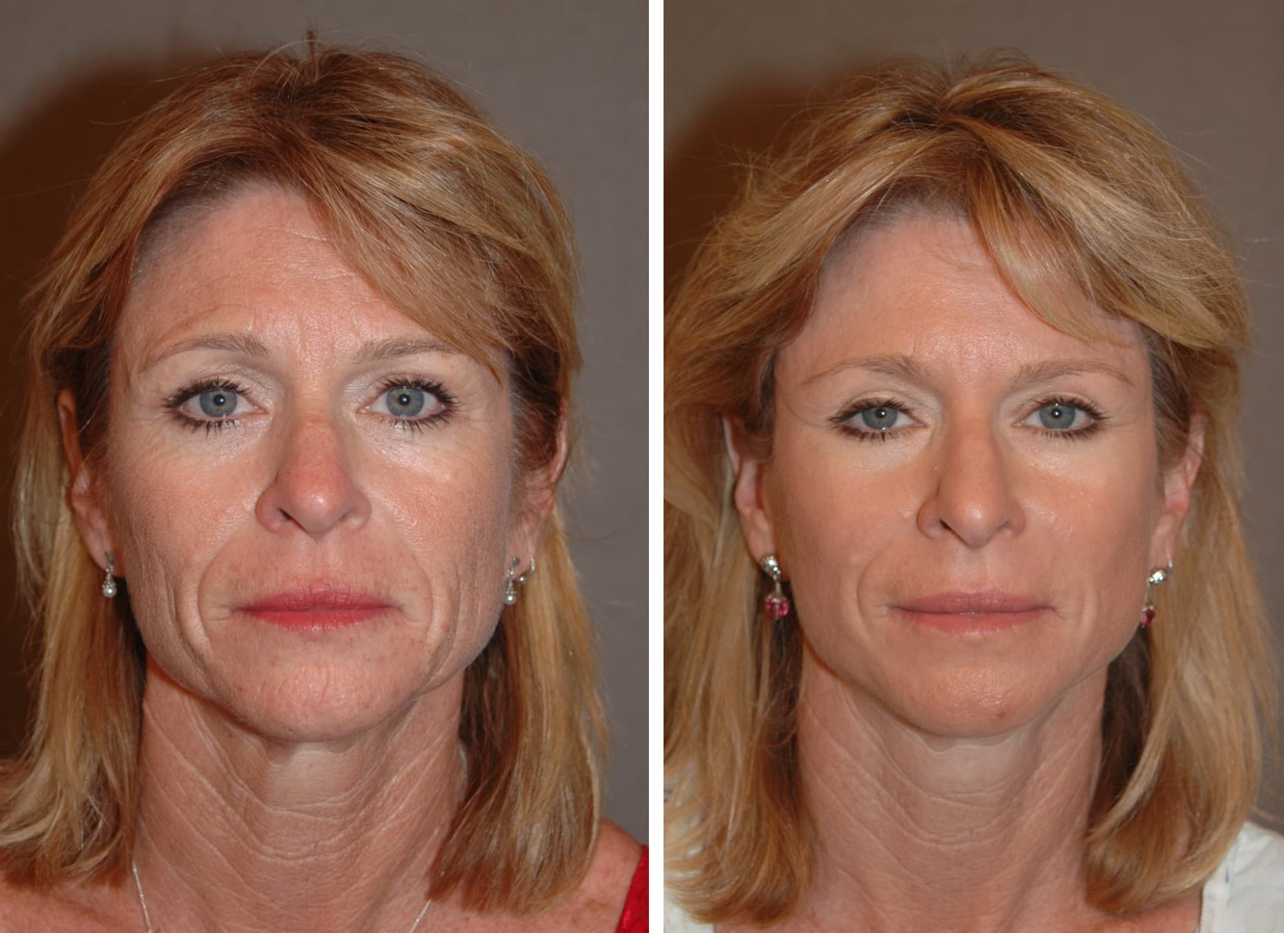 Plastic Surgery Before And After Cost photo - 1
