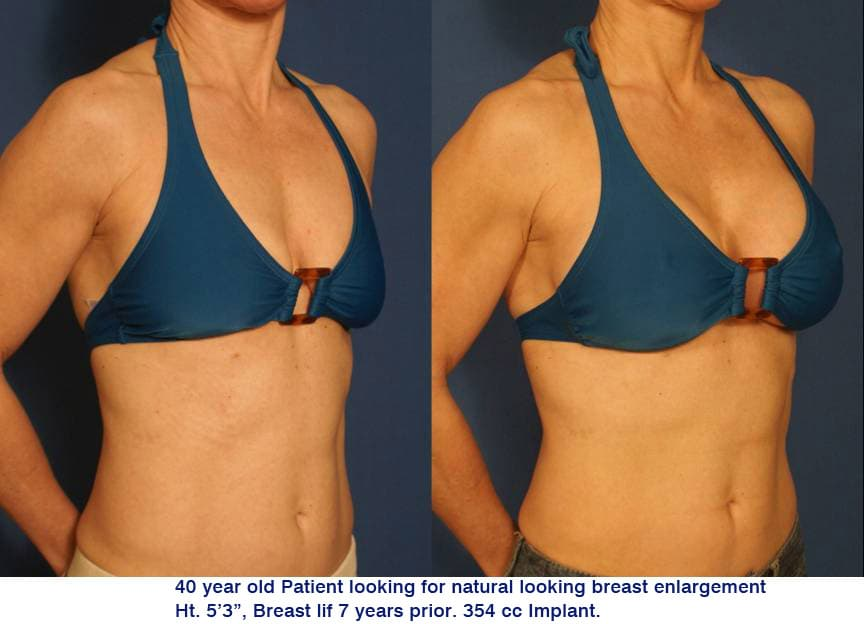 Plastic Surgery Before After Videos photo - 1