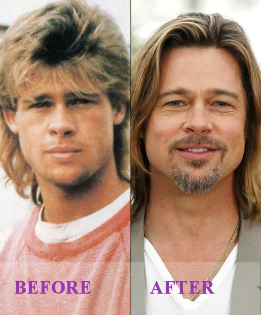 Plastic Surgery Celebrities Before After photo - 1