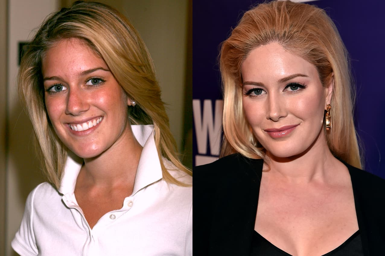 Plastic Surgery Drastic Before And After photo - 1