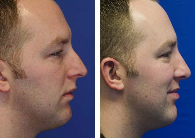 Plastic Surgery Results Before And After photo - 1