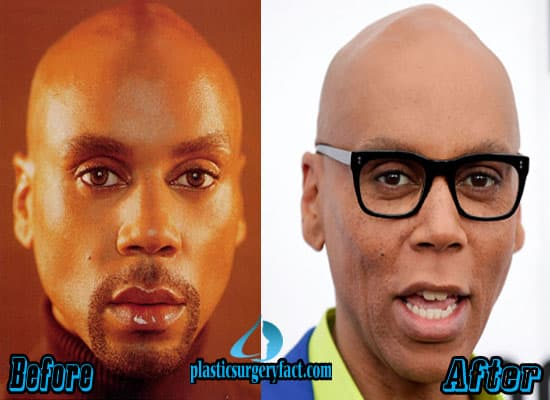 Rupaul Before And After Plastic Surgery photo - 1