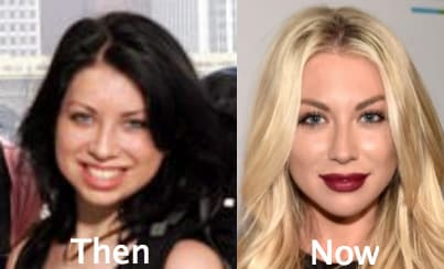 Stassi Plastic Before And After Surgery photo - 1