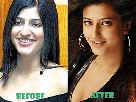Shruti Hassan Before Plastic Surgery photo - 1