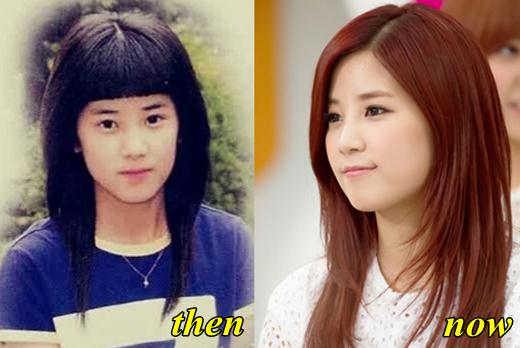 Song Ji Eun Before Plastic Surgery photo - 1