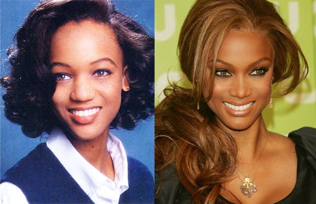 Tyra Banks Before Plastic Surgery photo - 1
