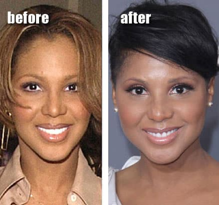 The Braxtons Before Plastic Surgery photo - 1