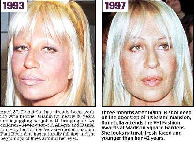 Versace Ceo Before Plastic Surgery photo - 1