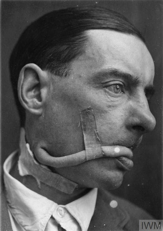Ww1 Plastic Surgery Before And After photo - 1