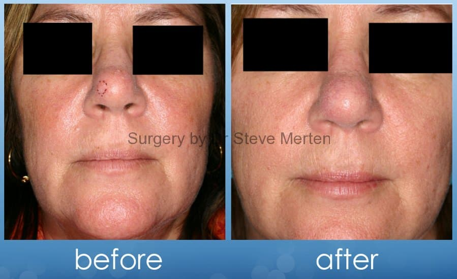 What To Avoid Before Plastic Surgery photo - 1