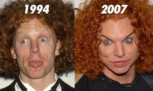 Worst Before And After Plastic Surgery photo - 1
