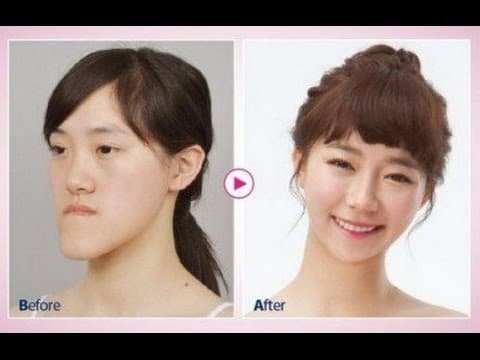Youtube Plastic Surgery Before And After photo - 1