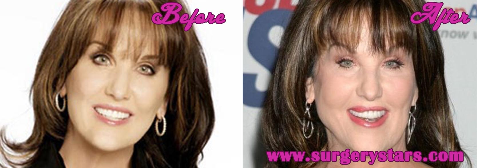 legal age for plastic surgery USA photo - 1