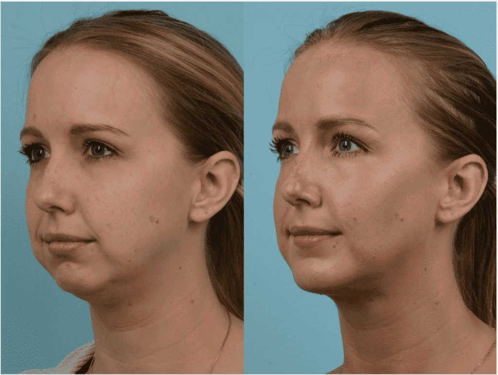 plastic surgery buccal fat removal photo - 1