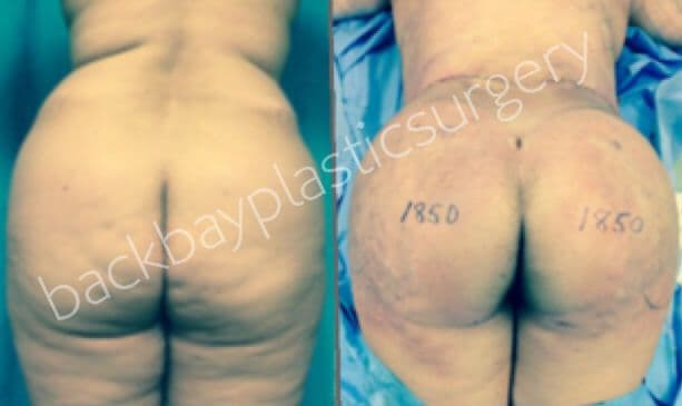 plastic surgery buttocks injection photo - 1