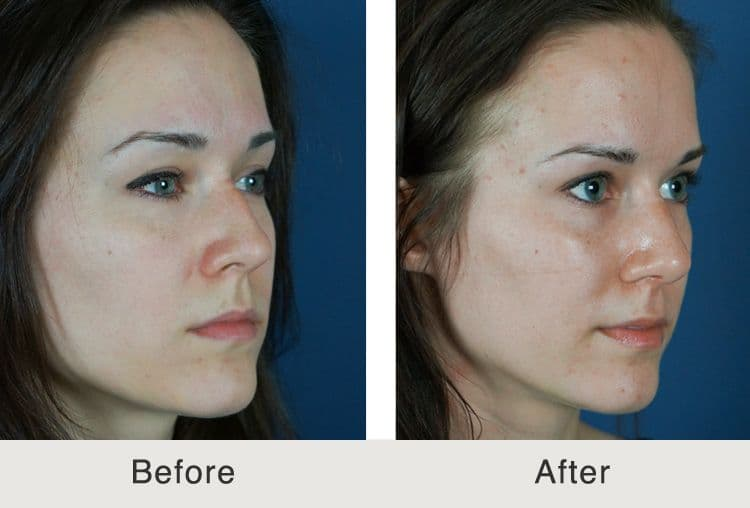 plastic surgery costs for nose photo - 1